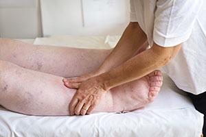 manuele lymfedrainage een behandeling die kan worden toegepast bij oedeemtherapie