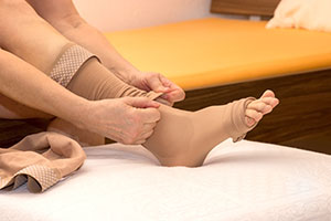 Ambulante Compressietherapie een behandeling die kan worden toegepast bij oedeemtherapie